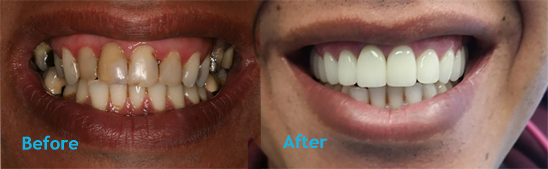 Teeth Whitening Vienna VA